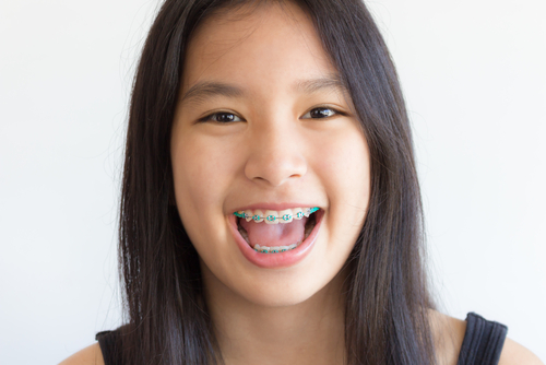 adjust to teen dental braces lawrenceville orthodontists