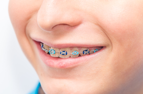get braces in winter lawrenceville orthodontics