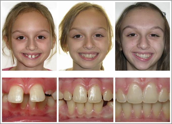 Children two stage orthodontic treatment