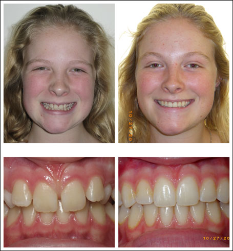 Orthodontic treatment for children